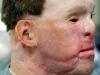 todd-nelson-prosthetic-ear-4